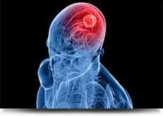 Obat Tumor Otak Alami Tanpa Operasi